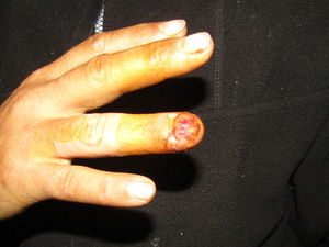 Finger-Jul23.jpg